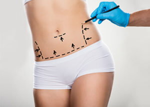 tummy-tuck-procedure-melbourne