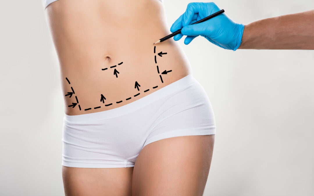 What Is A Fleur De Lis Abdominoplasty? How Effective Is It?